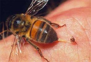 apiterapiya