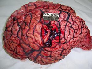 otek-mozga1